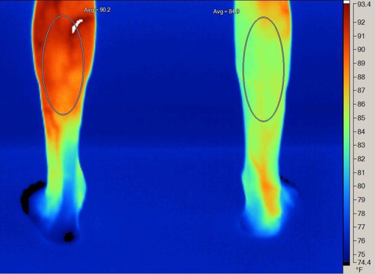 Lower Legs Posterior