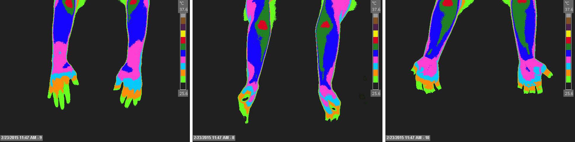 Nl-Upper-Drosal-Radial-and-Volar-forearms-2