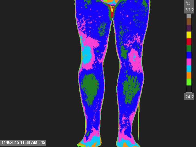 nl-anterior-thighs