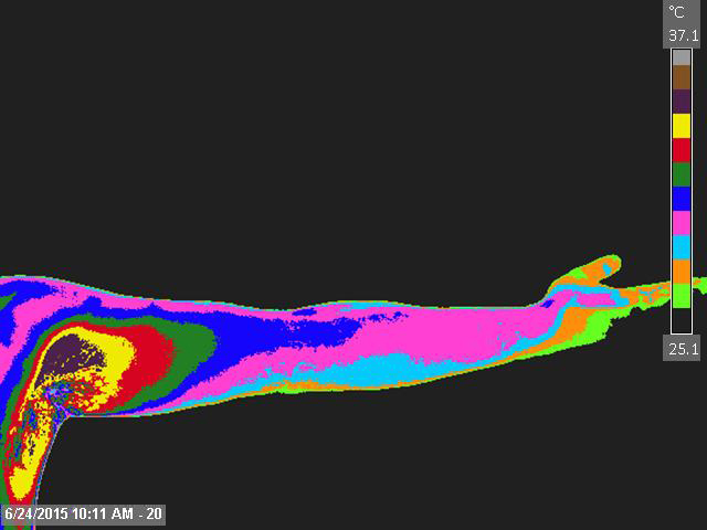 Left-Medial-Arm-and-Forearm